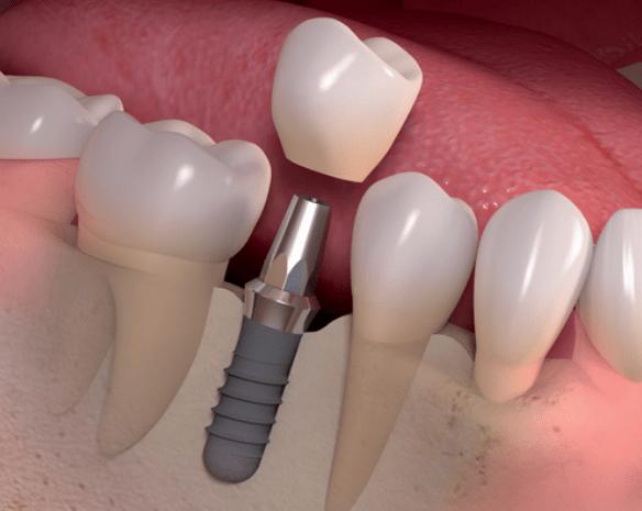 corona_implante1