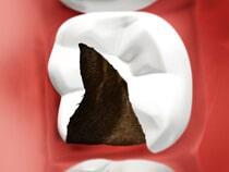 Amalgam Free Dentistry