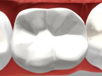 Tooth Colored Bonded Fillings