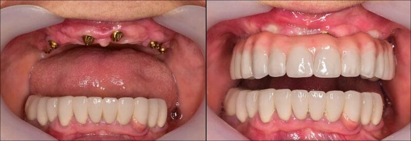 associates denture-before-after