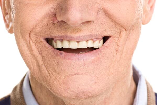 associates denture-smiling sr man