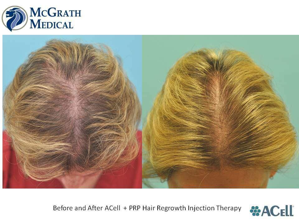Before & After ACell + PRP Hair Regrowth Injection Therapy- Female