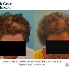 Before & After ACell + PRP Hair Regrowth Injection Therapy- 70 year old female