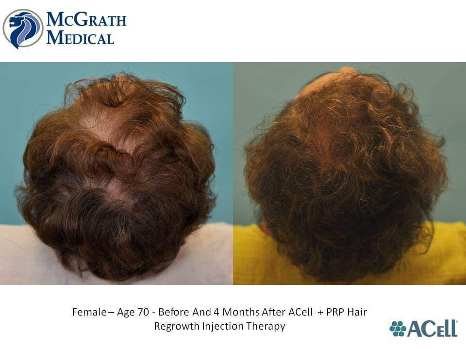 Before & After ACell + PRP Hair Regrowth Injection Therapy Top View - Female