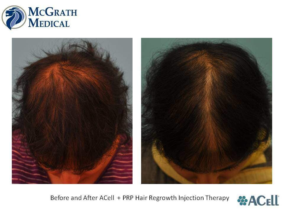 Before & After ACell + PRP Hair Regrowth Injection Therapy