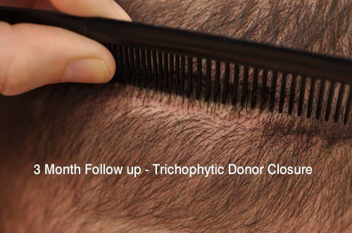3 Month Follow up Trichophytic Donor Closure