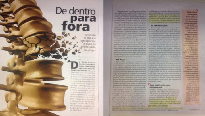 Efeitos da Osteoporose - Revista Alto Astral, ano 2, número 2, 2016