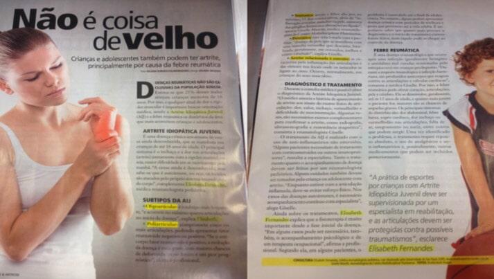 Artrite Idiopática Juvenil - Revista Artrite e Artrose, Ano 1, numero 2, 2016